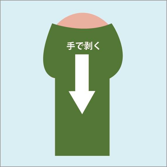 絆創膏での包茎治療手順01