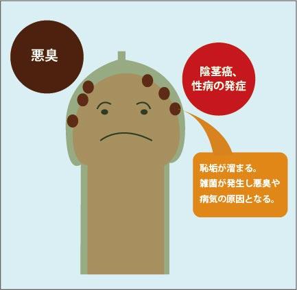 真性包茎のデメリット図解:恥垢が溜まり、雑菌が発生して陰茎癌・性病・悪臭などの原因となる。