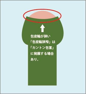 カントン(嵌頓)包茎の原因