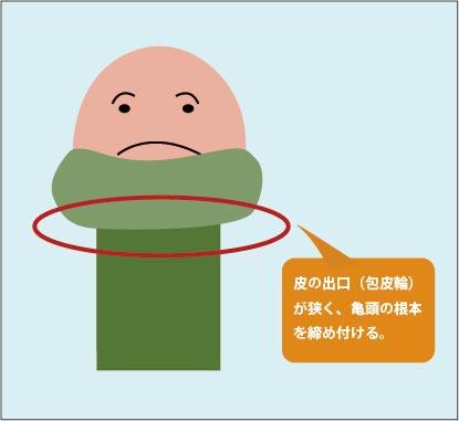 嵌頓(カントン)包茎の図解:包皮の出口である包皮輪が狭窄状態であり、無理に剥くことで陰茎が締め付けられ、亀頭の下が膨れ上がってしまう。