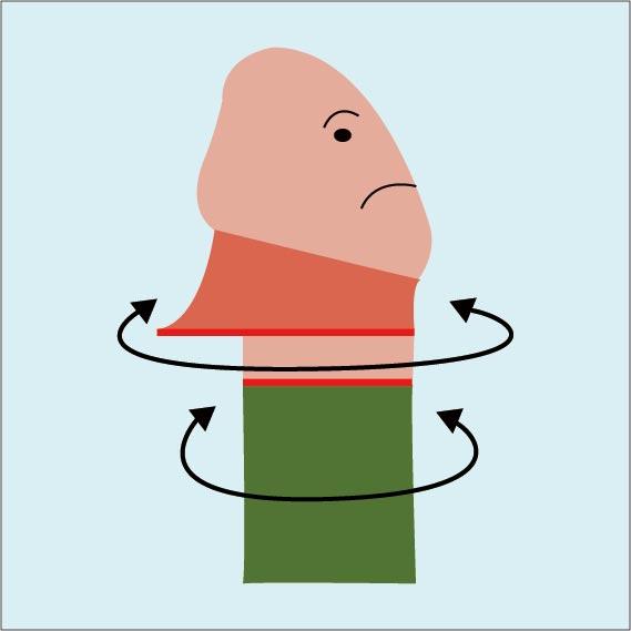ペリカン変形となる原因の図解:内板と外板の直径が異なった状態で縫合してしまうことが原因。