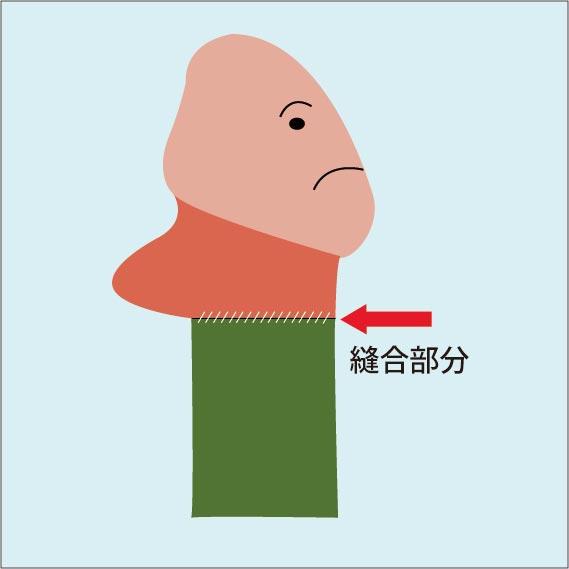 ペリカン変形の図解:亀頭下部にある包皮小帯(裏スジ)部分のリンパが腫れてしまい、ペニスを横から見た時にペリカンの下あごのような見た目になる後遺症。