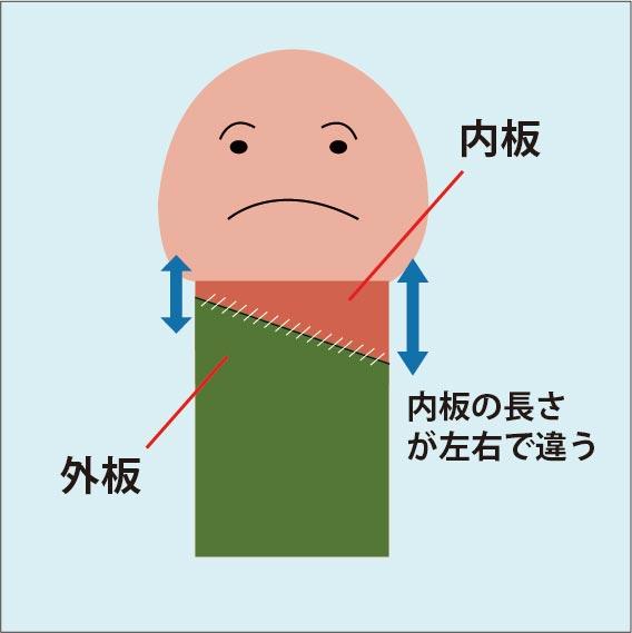 包皮内板の左右非対称図解:手術時で余剰包皮を切除する際、内板の左右の長さが異なるように切除してしまうことで、縫合した時に縫合のラインが斜めになってしまう。