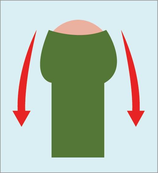 費用や器具を使わずに真性包茎を治す方法の図解:余剰包皮をペニスの根本に引っ張り、徐々に剥いていく。