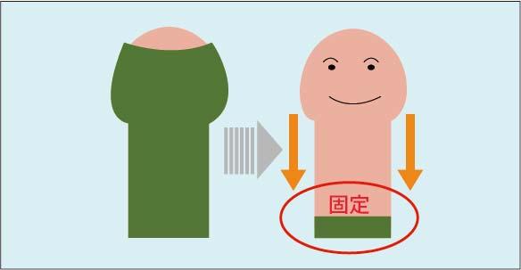 切らない包茎手術の図解:余剰包皮を根本に糸で固定し、剥き癖をつける方法。