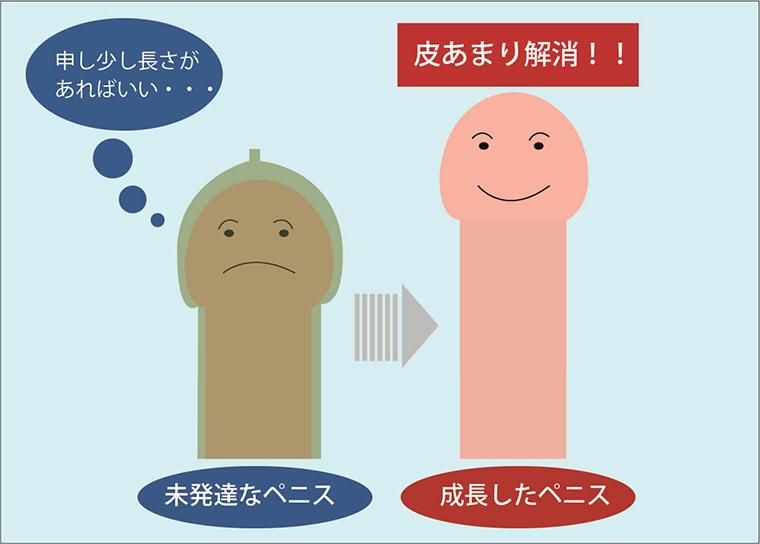 包茎の原因が包皮の余剰であることの解説画像:ペニスが成長して長くなることで包皮の余剰が解消され包茎ではなくなる。