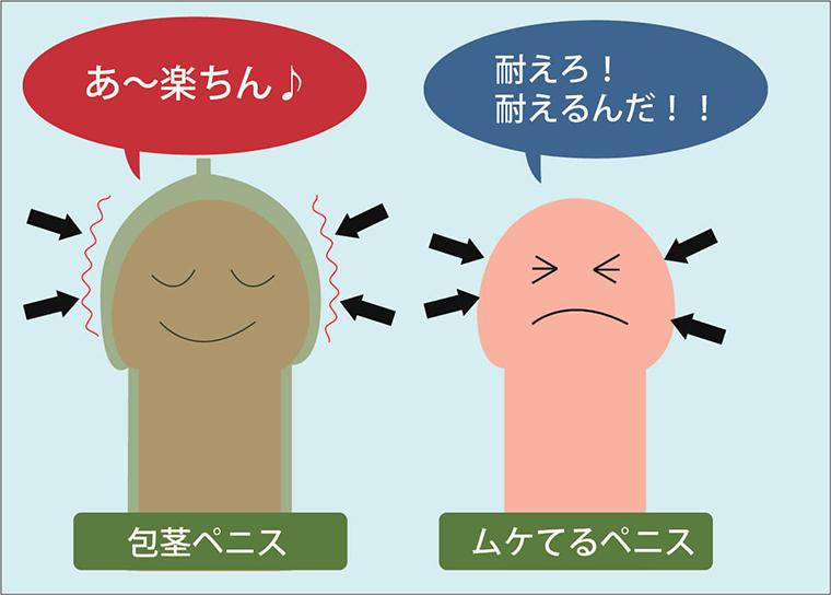 過敏性早漏の原因解説画像:包茎の場合、性感帯である亀頭が包皮に覆われており刺激から守られている。よって包皮を剥いてセックスに臨むと、亀頭が刺激に対し過敏なため早漏になる。