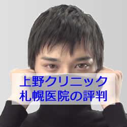 クリニック cm 上野 上野クリニックのCMについて解説する【タートルネックの意味は?】