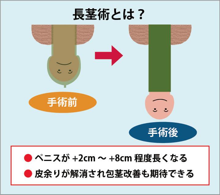 長茎術の解説画像:施術を受けることでペニスの長さが2cm~8cm程度長くなる。余剰包皮の解消により包茎の改善も期待できる。