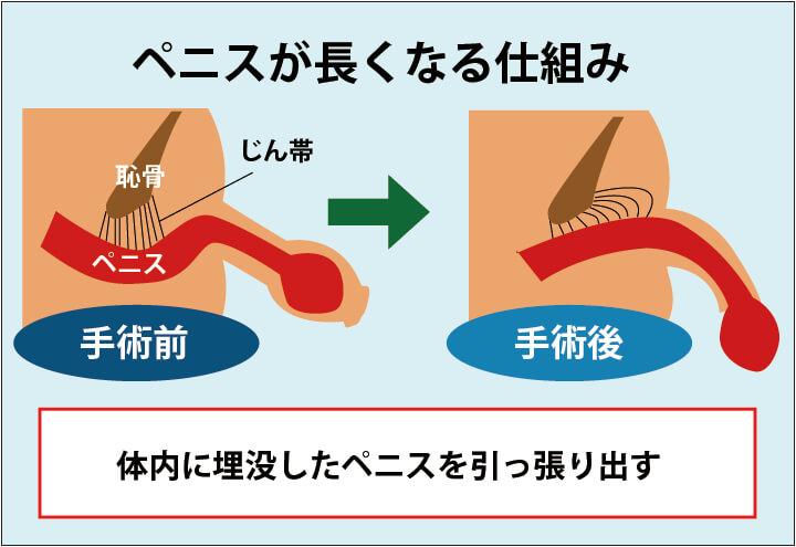 長茎術によりペニスが長くなる仕組みの解説画像:体内に埋没したペニスを、ペニスを固定している靭帯に糸をひっかけて引っ張り出し、固定する。