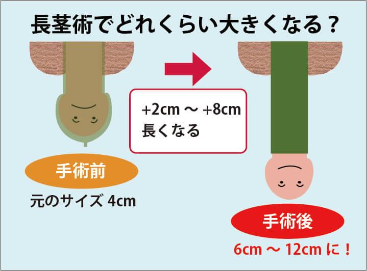 長茎術によってペニスがどの程度長くなるかの解説画像:手術前と比べて2cm~8cm程度長くなることが期待できる。