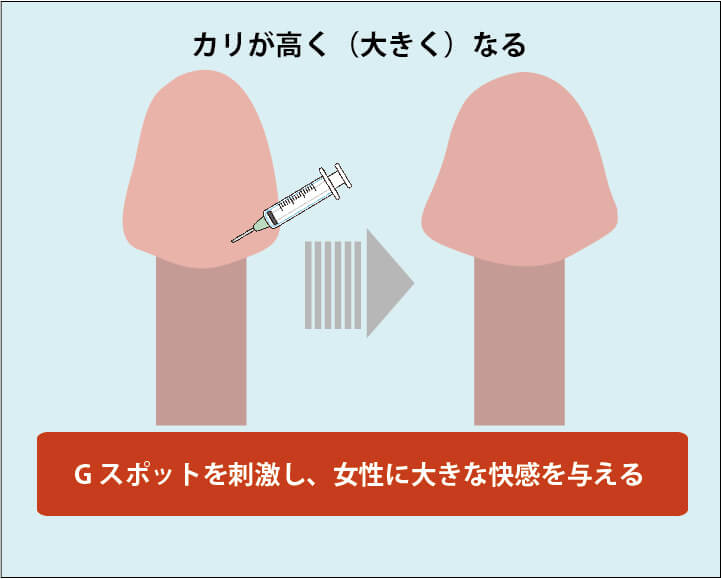 亀頭増大手術の効果解説画像01(カリ高ペニスになる):亀頭のカリ部分が高く(大きく)なる。