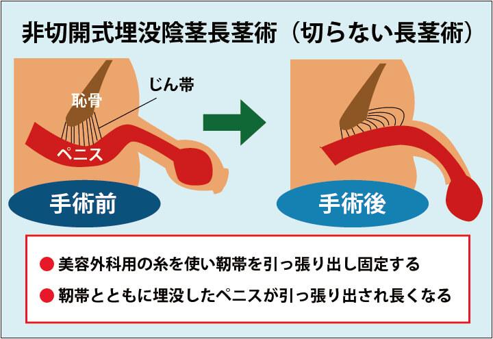非切開式埋没陰茎長茎術(切らない長茎術)の解説画像:美容外科用の糸を使って靭帯を引っ張り、体内に埋没しているペニスを引っ張り出す。その状態で固定することでペニスが長くなる。