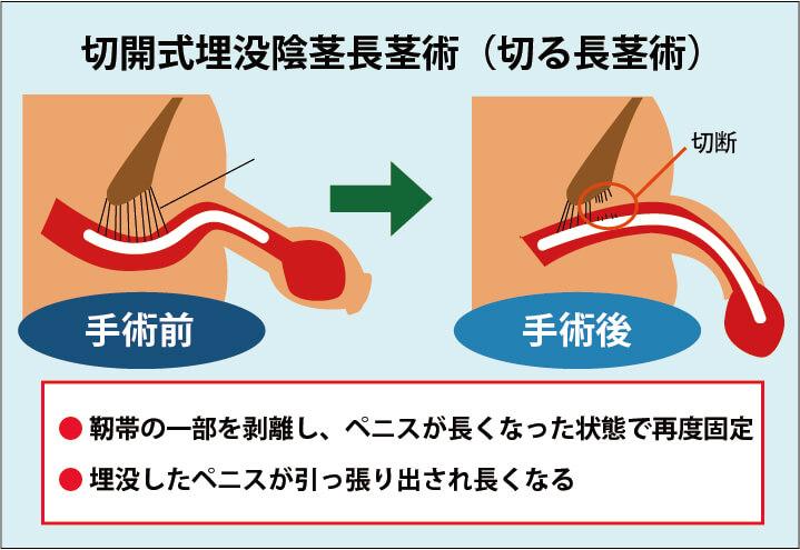 切開式埋没陰茎長茎術(切る長茎術)の解説画像:靭帯の一部を剥離し、ペニスが長くなった状態で再度固定する。埋没したペニスが引っ張り出されて長くなる。