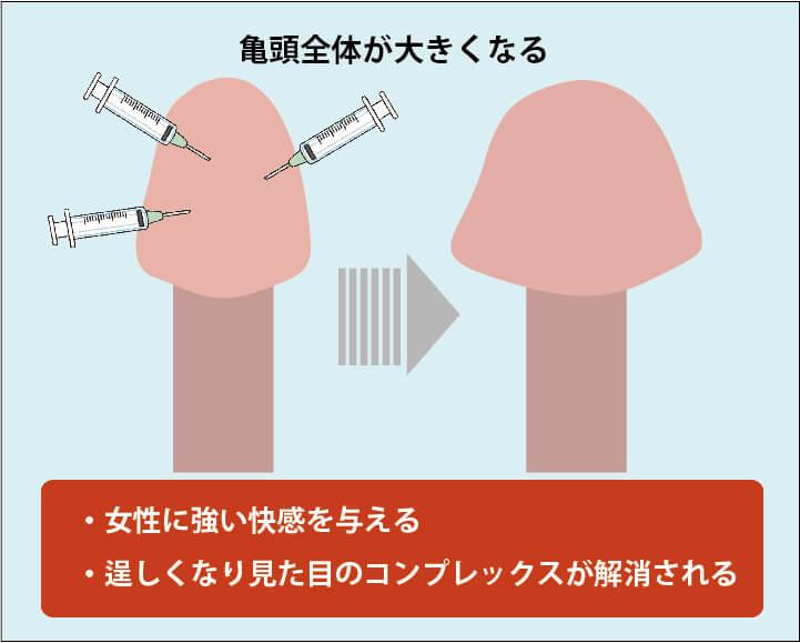 亀頭増大手術の効果解説画像02(亀頭が大きくなる):亀頭全体が大きくなることで、セックスの際に女性に大きな快感を与えることができる。また、見た目が逞しくなりコンプレックスが解消される。