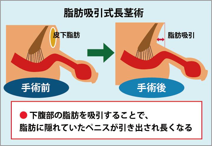 脂肪吸引式長茎術の解説画像:下腹部の皮下脂肪を吸引することで、脂肪によって埋没していたペニスが引き出されて長くなる。