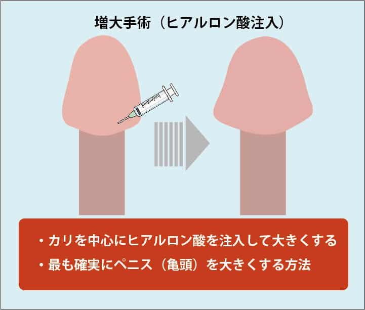 亀頭増大方法の解説画像:ヒアルロン酸注入による増大手術。亀頭のカリ部分にヒアルロン酸を注入して大きくする。最も確実に亀頭を大きくする方法。