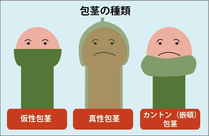 包茎の種類の図解:包茎には「仮性包茎」「真性包茎」「カントン(嵌頓)包茎」の3種類がある。