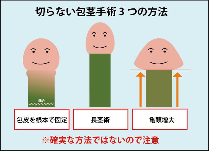 切らない包茎手術の3つの術式を説明する画像:1.余剰包皮を糸を使って陰茎の根本で固定する方法。2.長茎術、3.亀頭増大の3つ。ただし、確実に包茎が治る方法ではないので注意が必要。